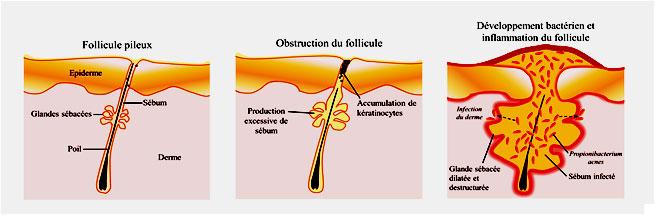 nastanak oziljaka od akni