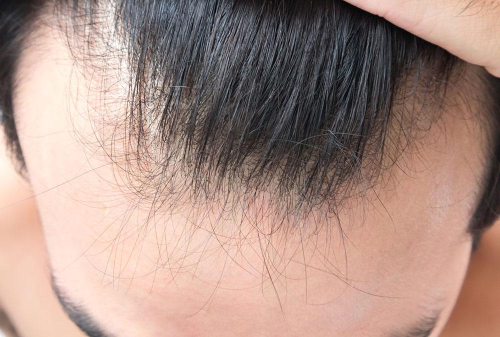 Androgenetska alopecija