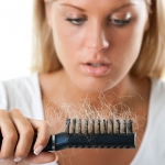 Kada ispadanje kose postane problem