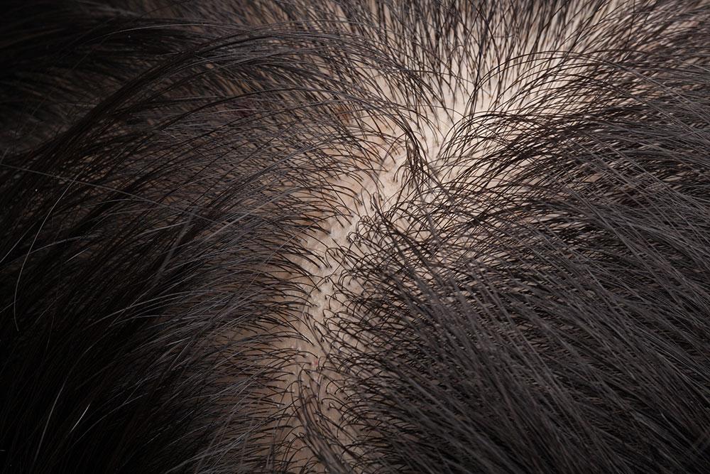difuzno ispadanje kose