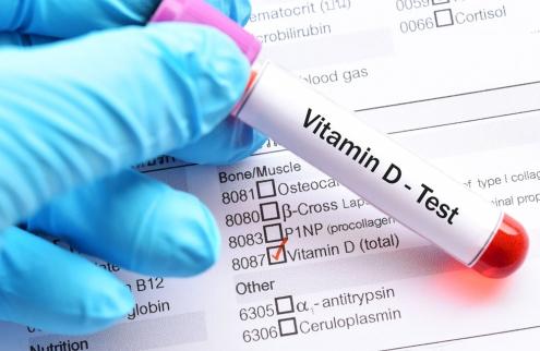 Vitamin D test